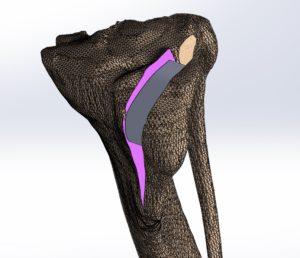TIBIA RECONSTRUIDA 3D